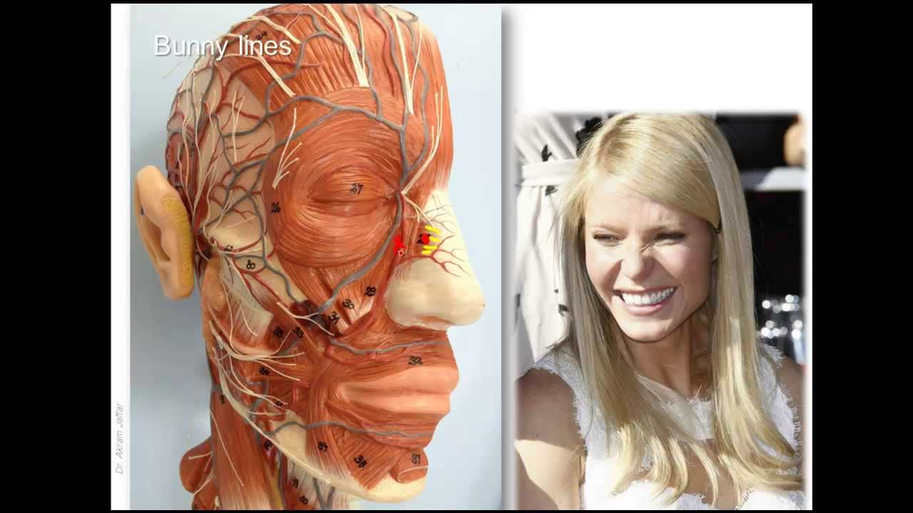 Anatomy of wrinkle lines and Botox injection sites - YouTube