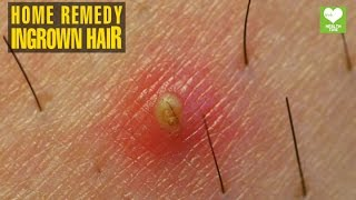Ingrown Hair - Home Remedies | Health Tips | Educational Video