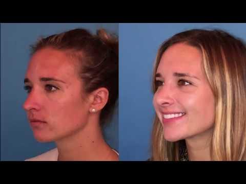 Best Rhinoplasty Reveal Video