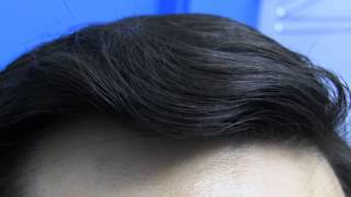 Hair Transplant Before and After Surgery Dr Hasson