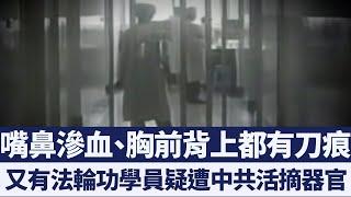 又有法輪功學員疑遭活摘器官 遺體傷痕暴露證據|新唐人亞太電視|20191219