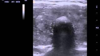 Аутоиммунный тиреоидит  УЗИ(Аутоиммунный тиреоидит - воспаление ткани щитовидной железы, вызванное аутоиммунными причинами., 2015-11-05T08:43:49.000Z)