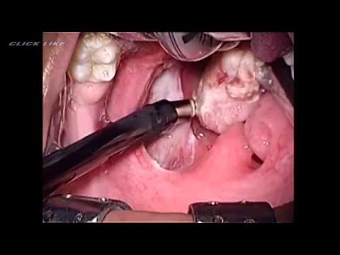10 Year Old Tonsil Stones!  Tonsillectomy & Removal