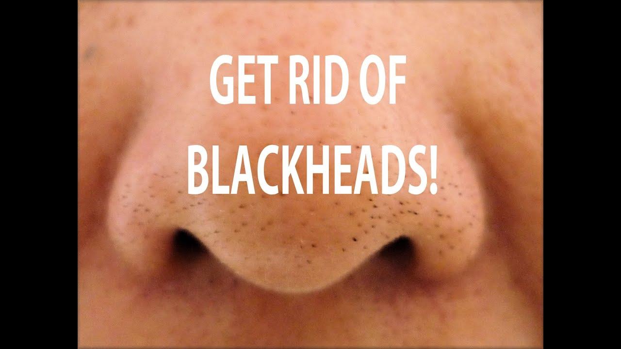 Rid of facial blackheads