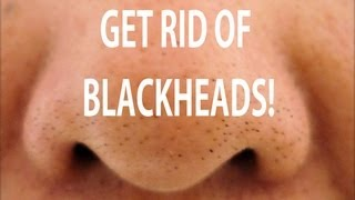 One of AprilAthena7's most viewed videos: HOW TO GET RID OF BLACKHEADS! DIY BLACKHEAD TREATMENT!