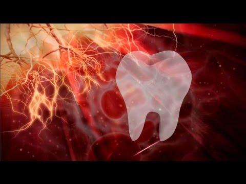 como tomar amoxicilina para dor de dente