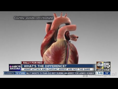 What's the difference between cardiac arrest and a heart attack?