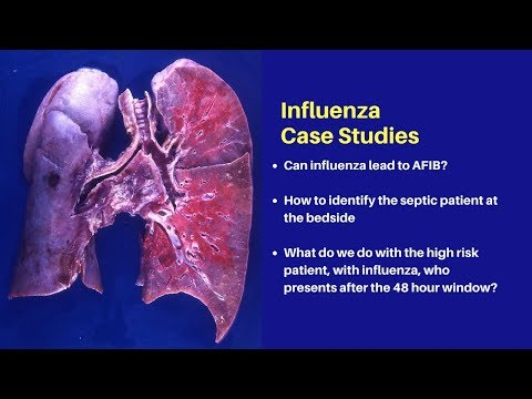 Influenza – What you need to know for 2018