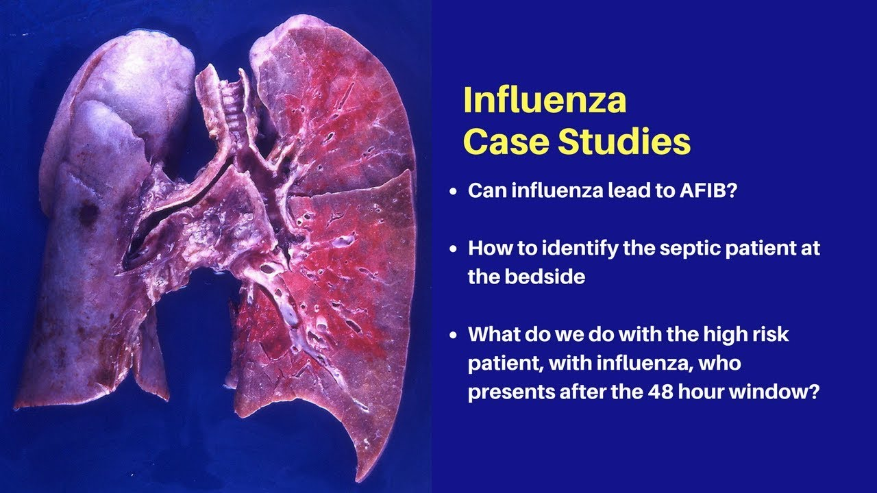 influenza what you need to know for 2018 youtube