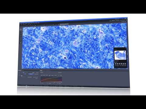 ZEISS Axio Scan.Z1 - Your Virtual Slide Scanner for High Throughput Whole Slide Imaging