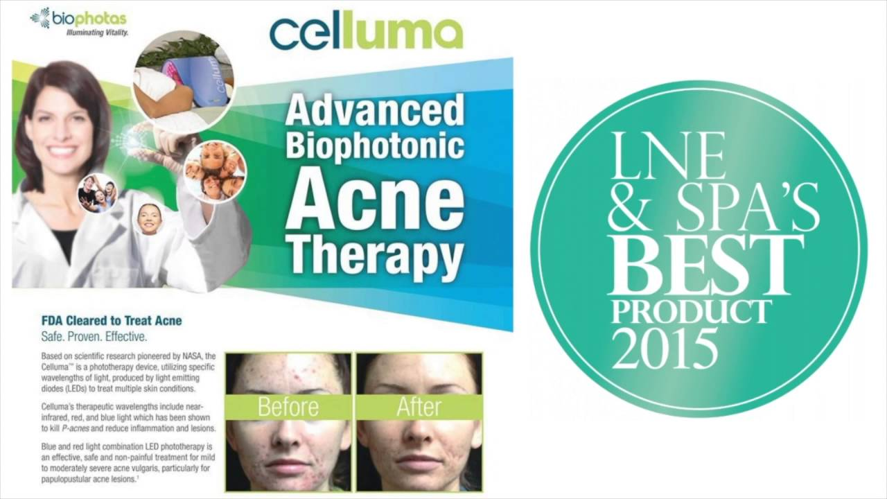 Image result for celluma before and after