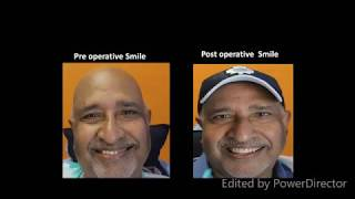 Dental touri st from canada shares his smile transformation journey