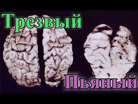 Это жесть. Как деградирует мозг пьющего человека и к чему приводит алкоголизм