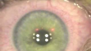 The introduction of CXL combined with routine LASIK, Kanellopoulos, MD (LASIK Xtra) 2012