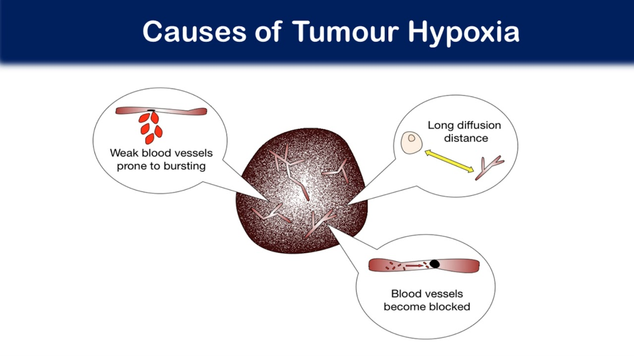 Investigating DNA repair mechanisms in hypoxic brain tumours and the link to treatment resistance