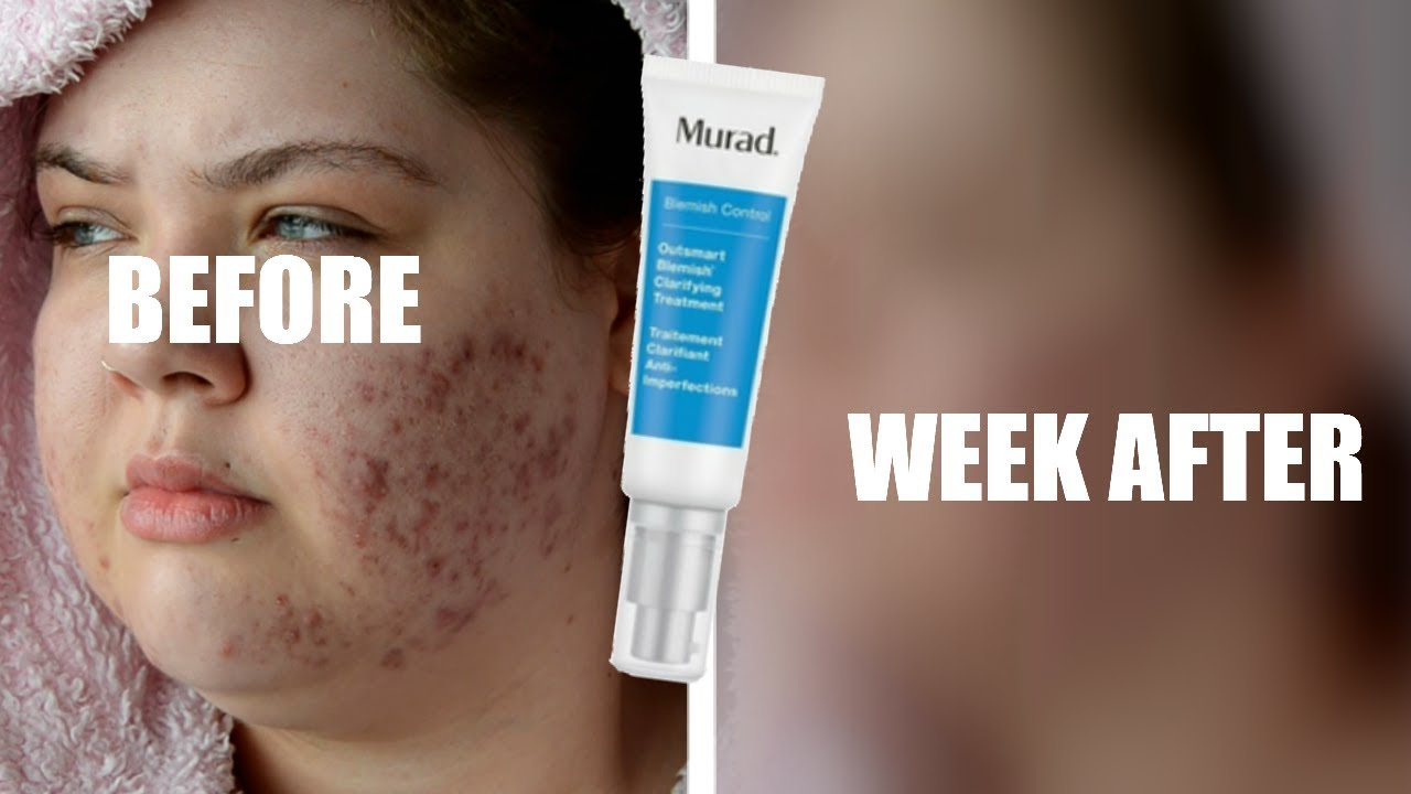 Testing Murad Outsmart Blemish Acne Treatment For A Week Oily Acne Prone Skin Youtube