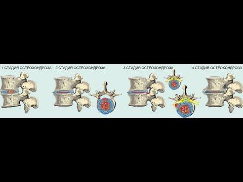 Шейно-грудной остеохондроз: признаки, симптомы и лечение