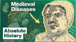 How Disease Plagued Daily Victorian Life | Medieval Dead | Absolute History
