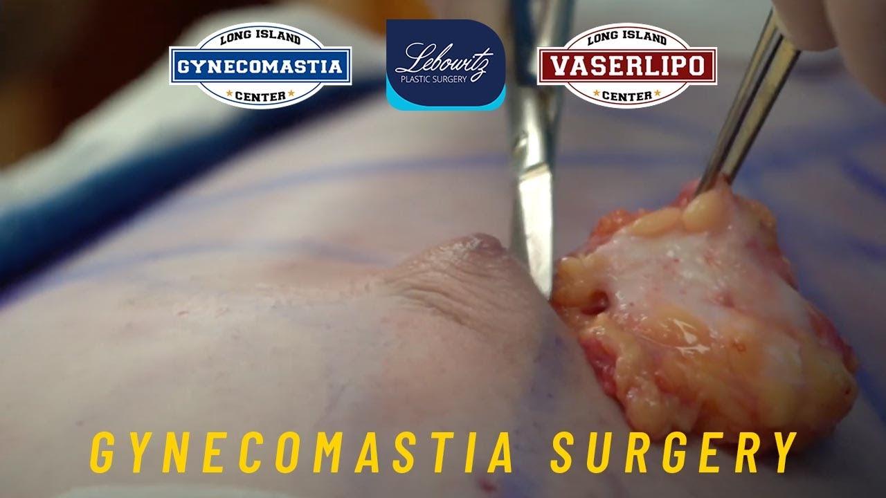 Gynecomastia Surgery: Bilateral Gland Removal, Vaser Liposculpture, Renuvion & Fat Grafting CA Male
