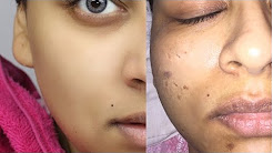 hqdefault - Best Chemical Peel For Acne Scars And Large Pores
