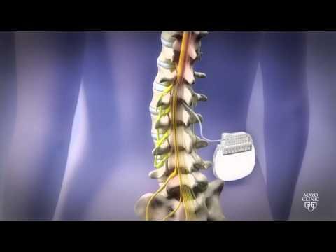 Spine Stimulator for Pain