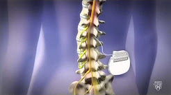 Spine Stimulator for Pain