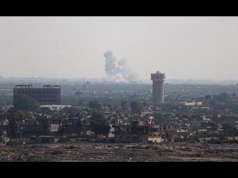 Sinai hospital treats victims of militant attack
