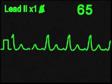 Wolff Parkinson White Syndrome - WPW - ECG Simulator - Arrhythmia Simulator
