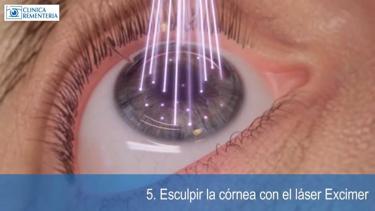 Afectados por la cirugia refractiva