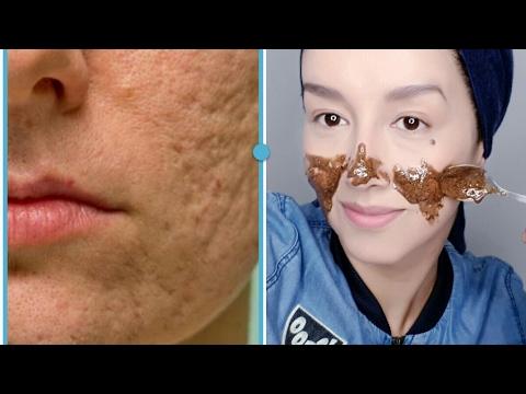 hqdefault - Como Puedo Borrar Las Cicatrices Del Acne