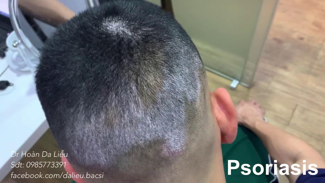 Bệnh vảy nến da đầu, vảy nến toàn thân  Psoriasis on the head, Psoriasis hold body