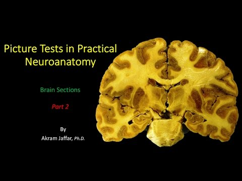 Picture Test in Neuroanatomy Brain Sections 2