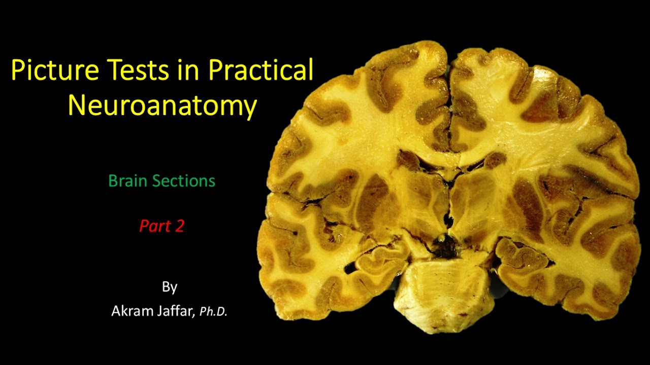Picture Test in Neuroanatomy Brain Sections 2 - YouTube