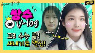 절개 쌍수+눈매교정+앞트임, 20살 새내기의 첫 성형 …