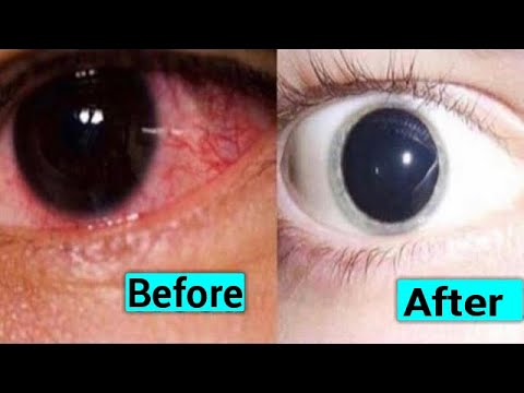 NATURAL WAY TO IMPROVE YOUR EYESIGHT AT HOME STOP WEARING GLASSES