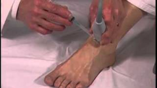 Ultrasound-Guided Foot Injection - SonoSite.mp4