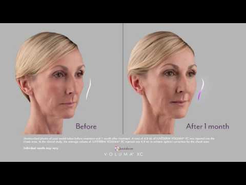 Facial Fillers Denver | Juvederm | Dermal Fillers |