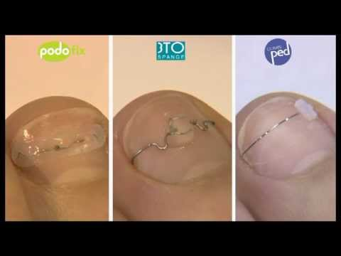 3TO Nagelspangen - YouTube