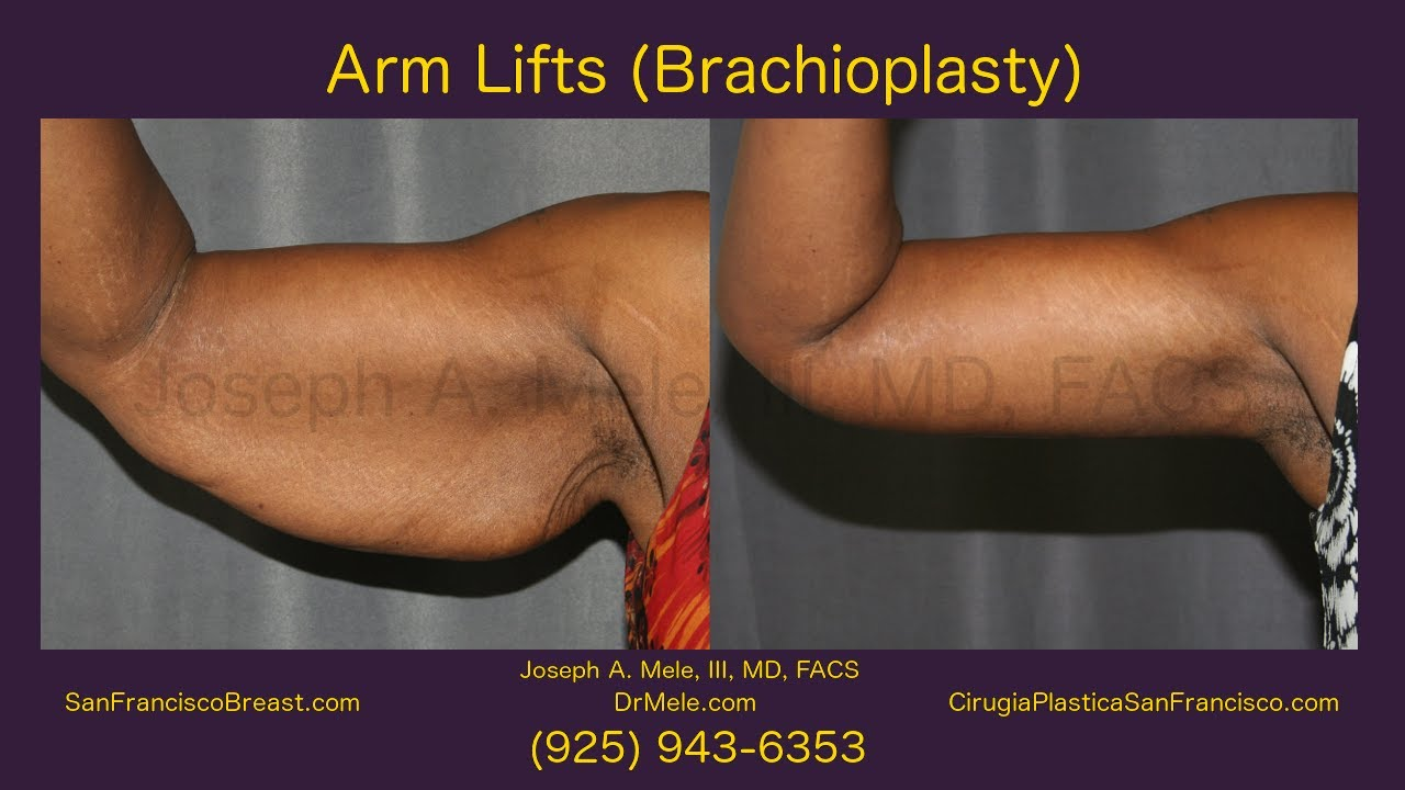 arm lift brachioplasty