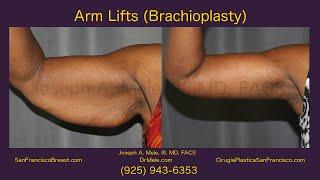 Arm Lift Chioplasty San Francisco Bay Area