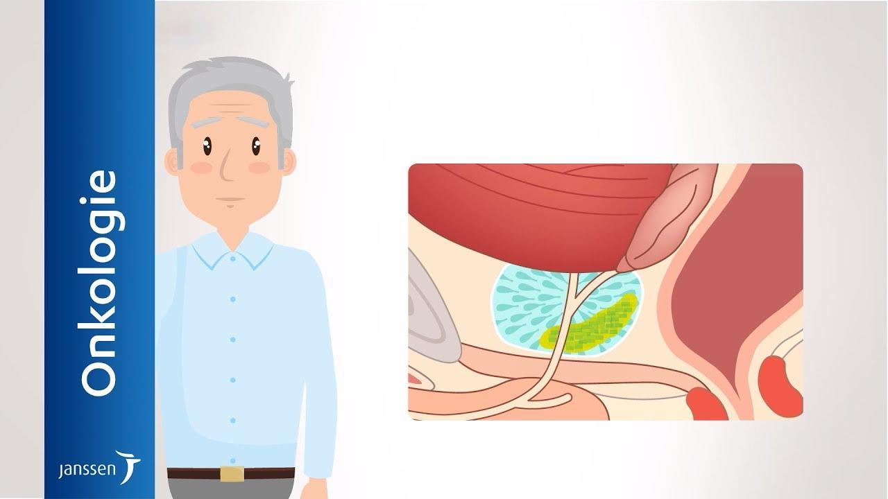janssen prostatakarzinom