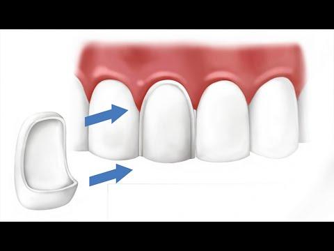 Что такое виниры для передних зубов. Ортопедическая стоматология