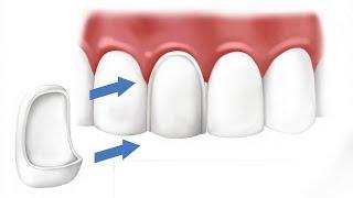 Что такое виниры для передних зубов. Ортопедическая стоматология(В этом видео мы поговорим о зубном протезирование передних зубов винирами. А так же поговорим о том, что..., 2015-06-14T15:37:26.000Z)
