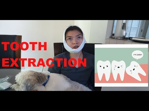 Tooth Extraction 4-29-16 Vlog