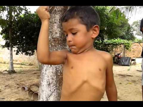 O menino mais forte do mundo youtube o menino mais forte do mundo altavistaventures Images