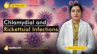 http://usmlefasttrack.com/?p=97 Treponema Pallidum, Chancre, Gumma, Penicillin G, HPV, Cryotherapy, .