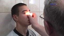 Операция на носна преграда