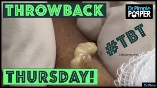 Reminiscing with Dr. Pimple Popper, TBT Part 7