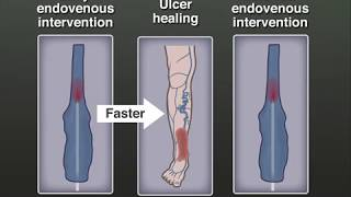 Treating Venous Leg Ulcers