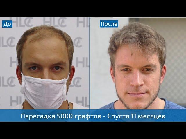 11 месяцев после пересадки 5000 графтов волос - Фото до и после, метод FUE - Клиника HLC